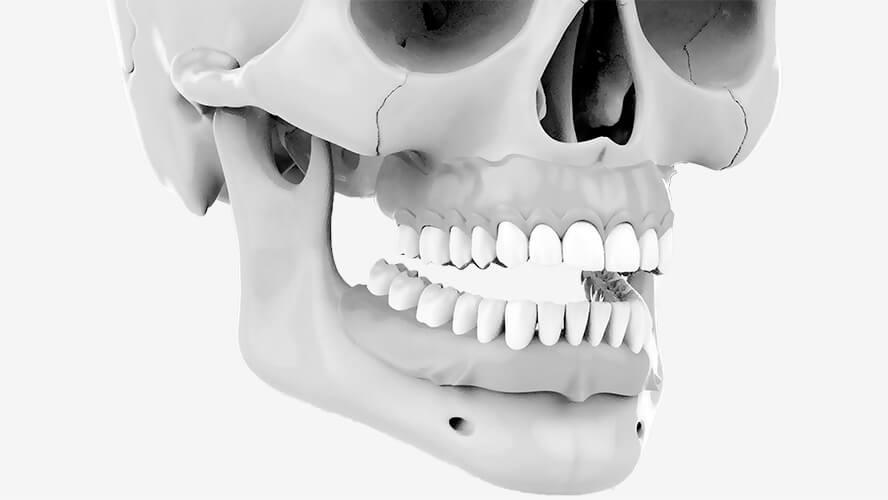 искусственная керамическая десна