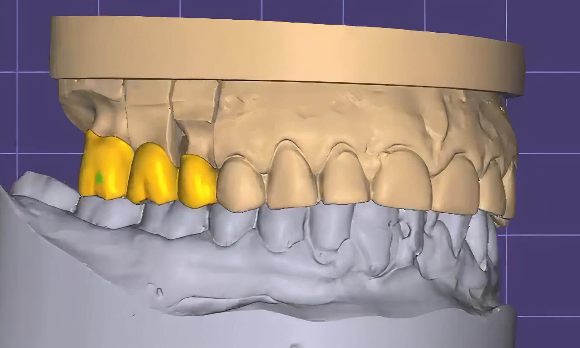 Цифровой слепок полости рта